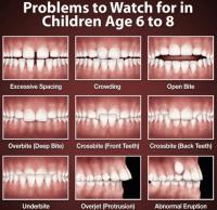orthodontie - appareil fixe