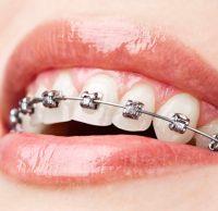 Orthodontie Fixe